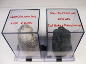 """Display showing the difference between a healthy lung and the lung of a coal miner with the """"black lung""""